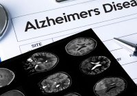 Alzheimer's costs U.S. $277 billion a year – and rising